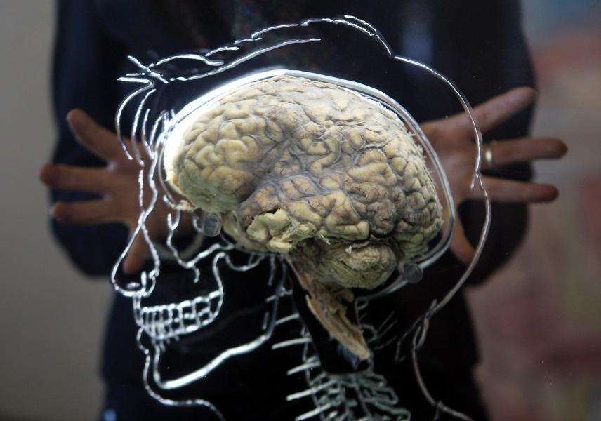 A Real Human Brain