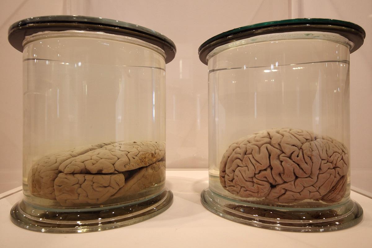 Preserved brains