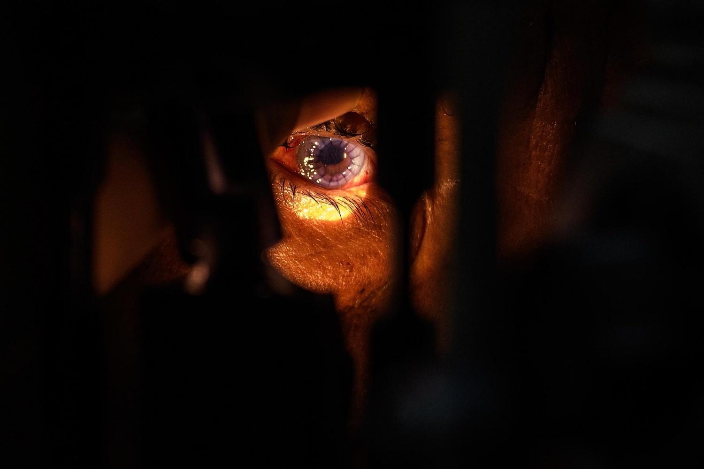 A Man's Eye During Transplant