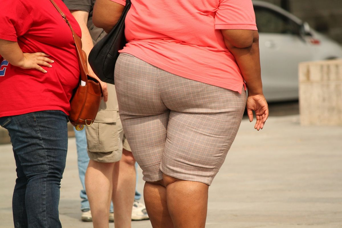Severe Obesity