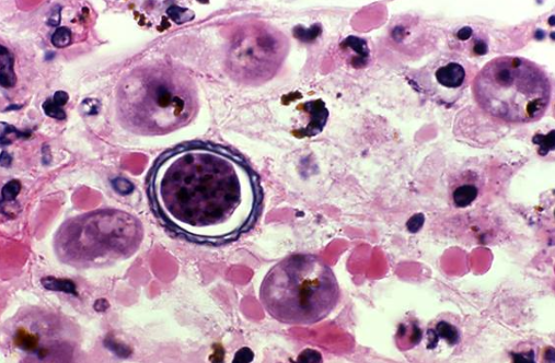 NEW PARASITE FOUND: Organism Found Can Live without Oxygen, Can this be a Sign of Life in Space?