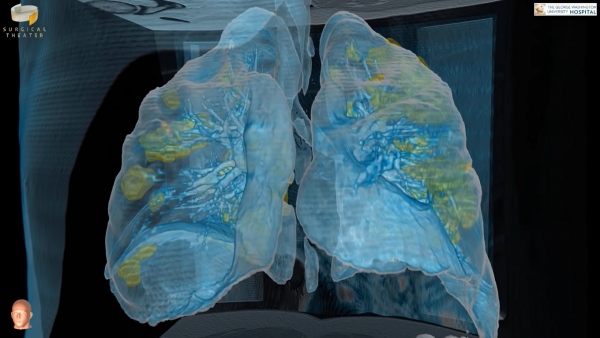 Coronavirus: Doctors Release VR Video of Critically Ill COVID-19 Patient's Lungs to Show the Destruction