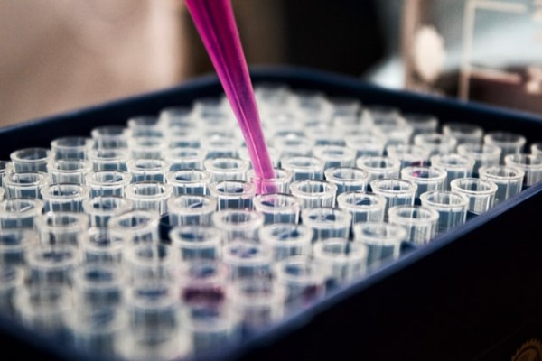 Coronavirus Antibody Tests Are Authorized by FDA: 2 New Tests Are On Their Way! Can This Make The Difference?