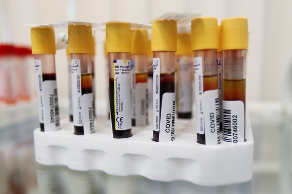 Vials with blood samples are pictured at a clinic providing testing for the coronavirus disease (COVID-19) and antibodies in Moscow