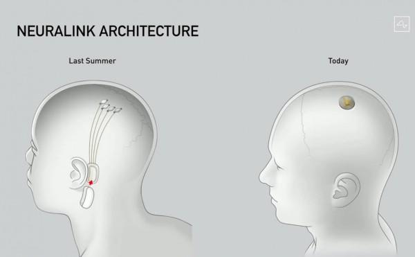 neuralink progress