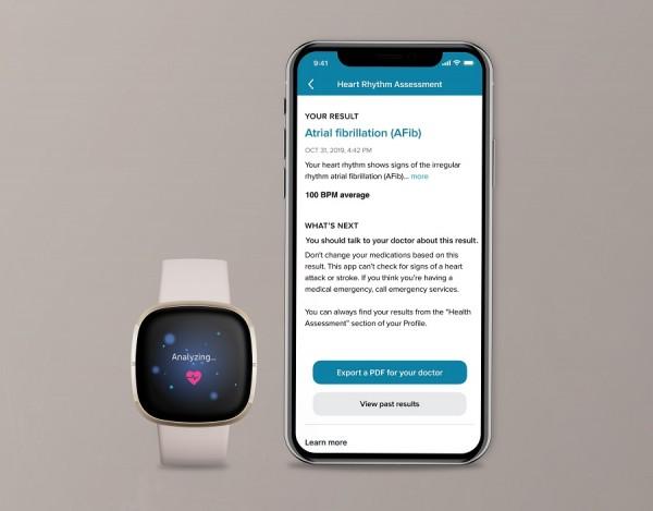 Fitbit Sense gets FDA approval for ECG sensor