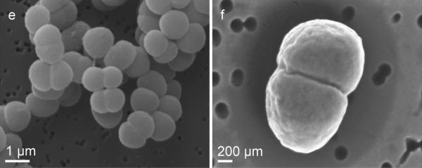 Space bacterium Deinococcus radiodurans