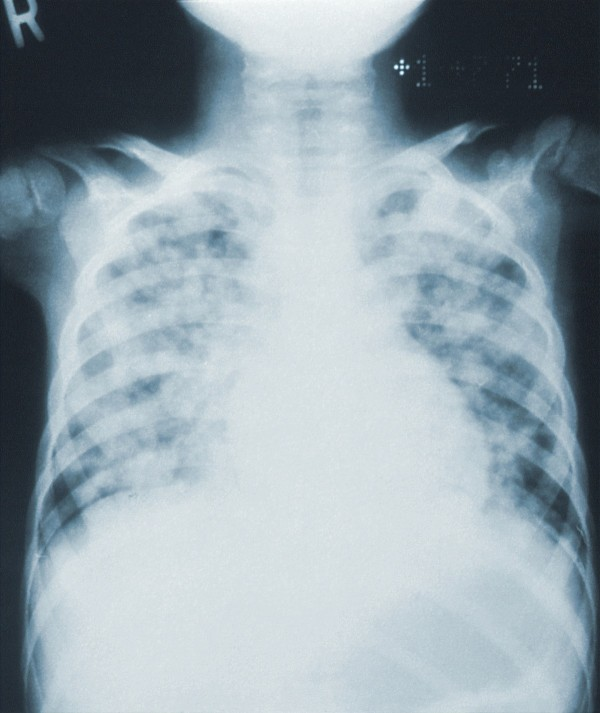 New chest x-ray tool uses Artificial Intelligence to detect Covid-19 with 83% accuracy