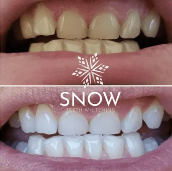 How does Snow® Teeth Whitening Kit work?