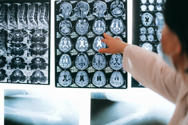 Bionaut Robots Can Now Be Used to Attack Brain Rumors; Tiny Devices Can Surpass Surgical Drilling