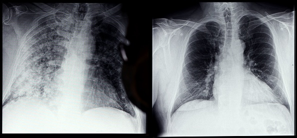 New COVID-19 X-Ray Images of Unvaccinated and Vaccinated Lungs Show Alarming Difference in Oxygen Inhalation